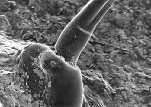 Microscopic views of fibers people say they have found emerging from their skin