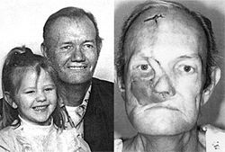 "Veteran tie-plant employee Don ""Slim"" Hightower developed an aggressive skin cancer that devoured his face and killed him."