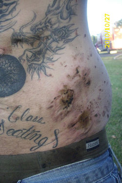 After the fire that claimed his mother's house, the scabs on James Durham's heavily inked torso tested positive for meth.